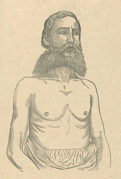 Schwindsüchtiger Brustbau